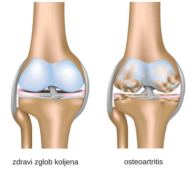 zdravi-zglob-koljena-e14242515115421